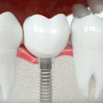Was sind die besten Zahnimplantate?